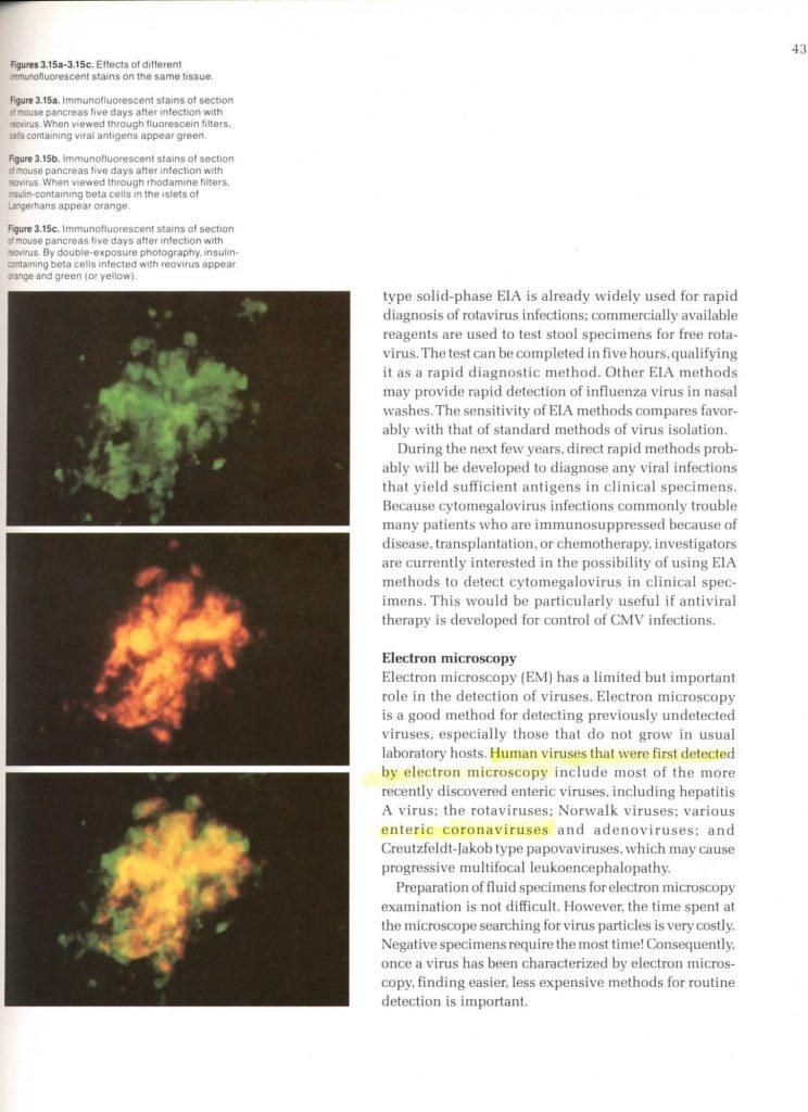 :Virology Coronavirus 1983:43 Virology Coronavirus 1983 3 electron microscope.jpg